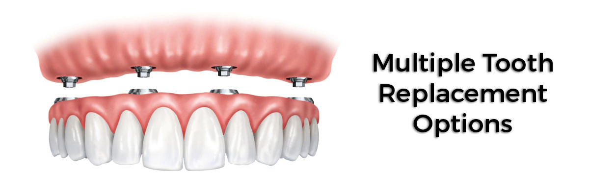 Sun City West Multiple Teeth Replacement Options